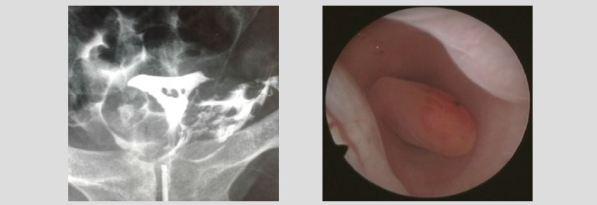 Hysteroscopy newsletter