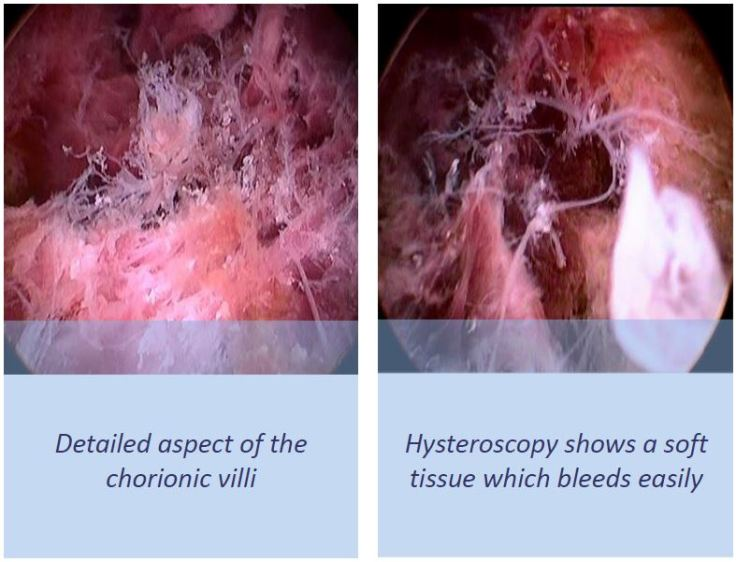 Hysteroscopy picture retained products of conception