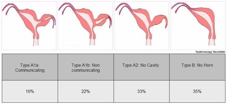 Classification unicornuate uterus.JPG