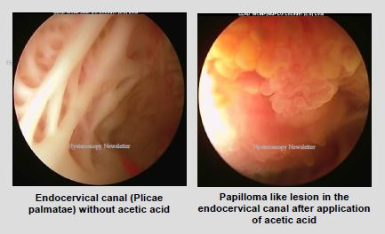 endocervical-lesions