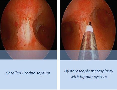 uterine-septum
