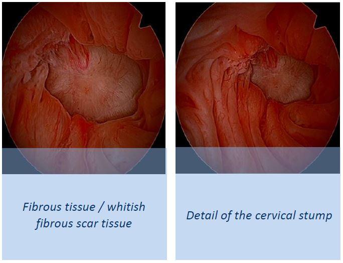 Bleeding after subtotal hysterectomy – Hysteroscopy Newsletter