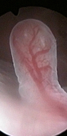 Early polyp 3