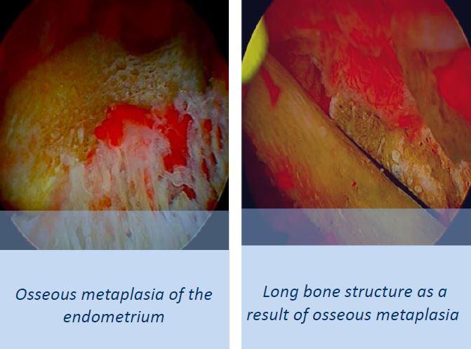 Osseous metaplasia of the endometrium