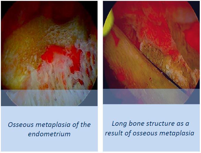 Osseous metaplasia