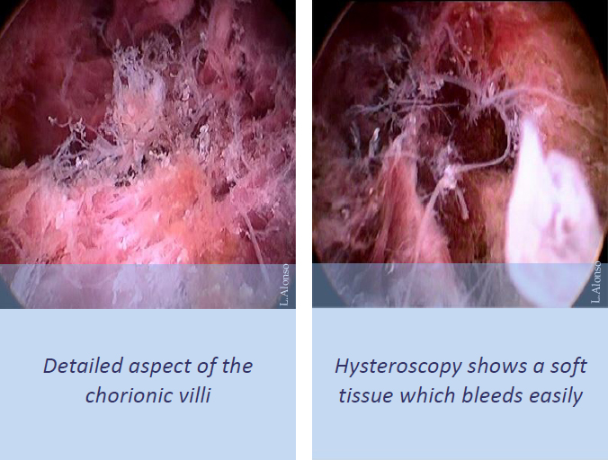 Retained Products of Conception – Hysteroscopy Newsletter