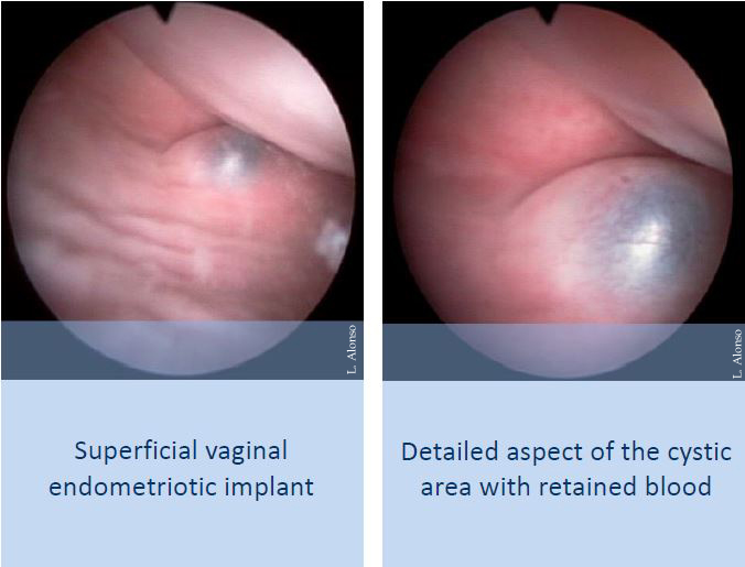 Hysteroscopic view of vaginal endometriosis – Hysteroscopy Newsletter